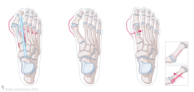 Scarf Osteotomie Fusschirurgie Nadja Stadelmann