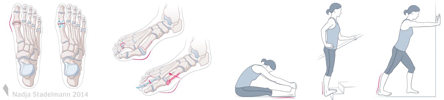Arthrodese Grosszehe Hallux-Osteotomie Nadja Stadelmann