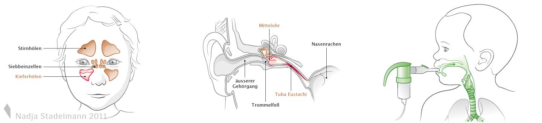 Paediatrie Nasennebenhöhlen, Mittelohrentzündung, Asthma