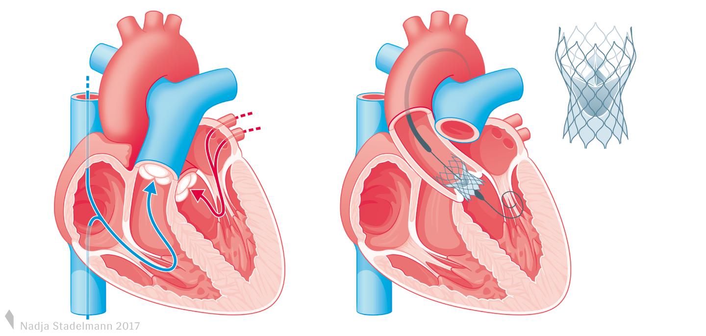 Transkatheter-Aortenklappen-Implantation TAVI Nadja Stadelmann